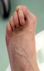 Diabetischer Fuß: Komplikationen und Behandlung - Dianol ist ein Mittel des Kampfes gegen Diabetes
