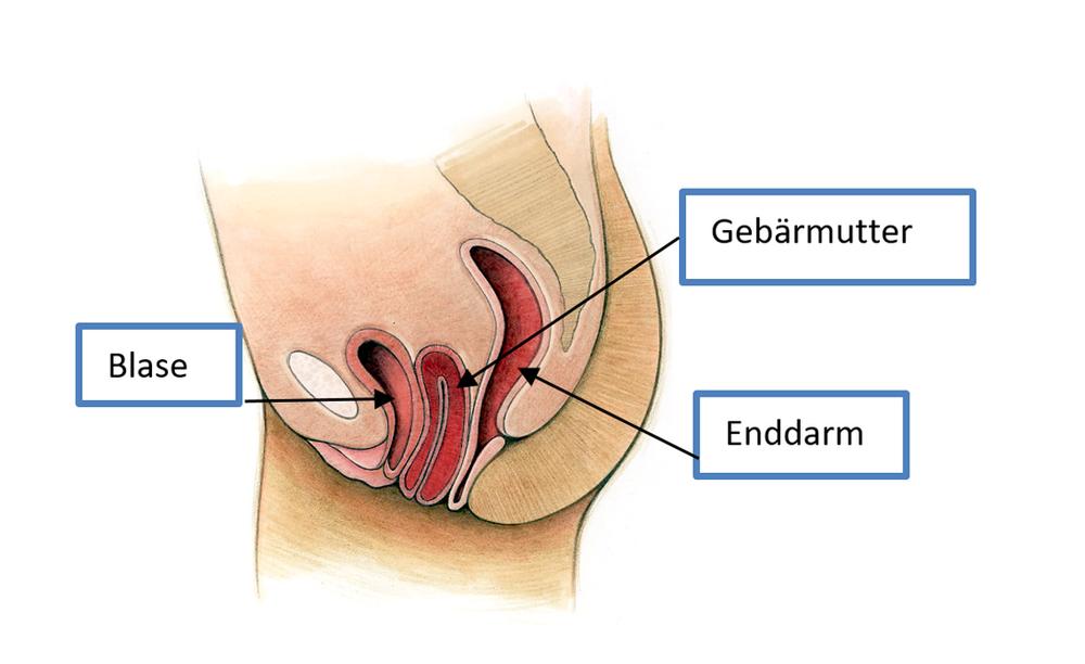 Senkungen der weiblichen Beckenorgane - Kontinenzzentrum ...